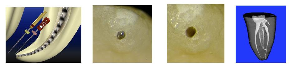 Endodonzia-ortograda